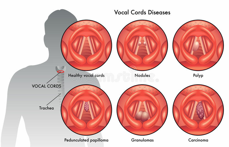 Vocal Cord Diseases Stock Photo Image Of Inflamed Polyps 59500674