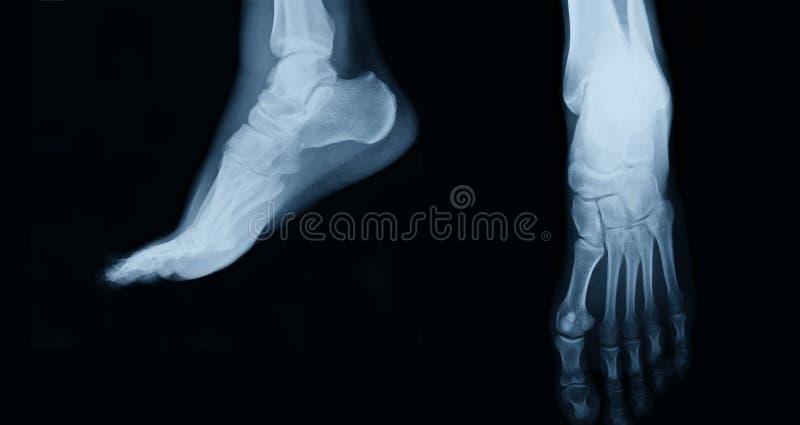 Voetröntgenstraal stock foto