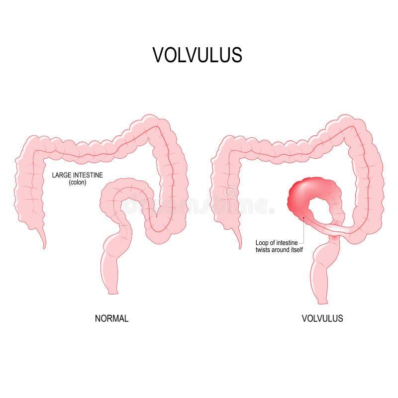 Volvulus pętla jelito przekręca wokoło royalty ilustracja