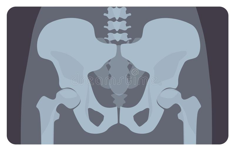 Voorafgaande röntgenfoto van menselijk bekken of heupbeen met lumbaal deel Röntgenfoto of beeld van menselijk skeletachtig systee royalty-vrije illustratie
