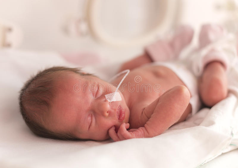Voorbarig pasgeboren babymeisje royalty-vrije stock fotografie