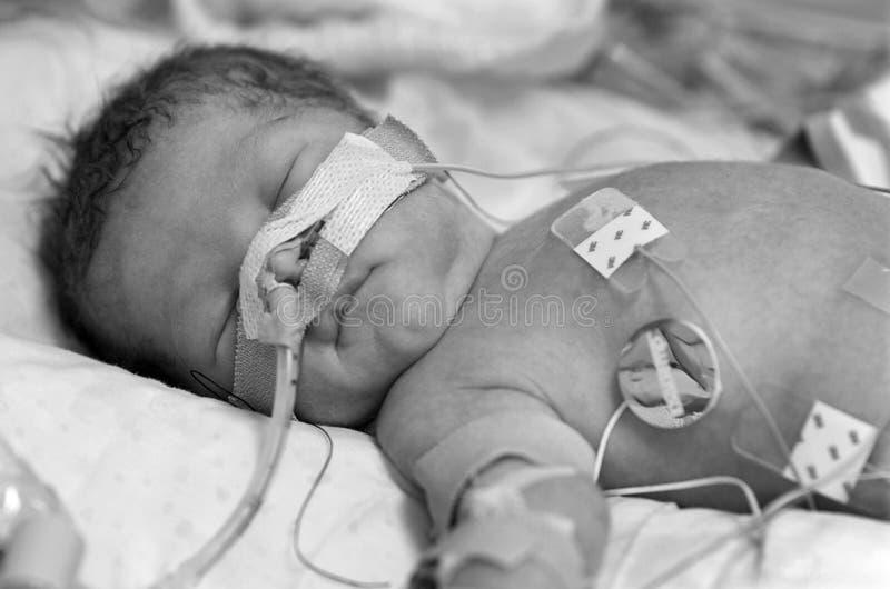 Voorbarige Baby royalty-vrije stock afbeeldingen