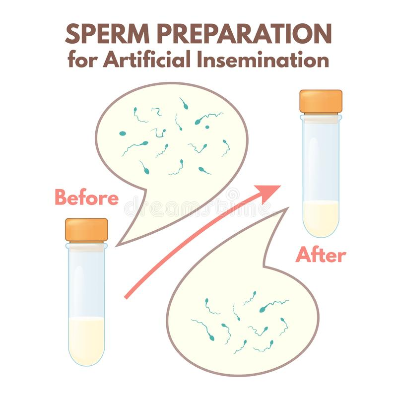 Voorbereiding van sperma royalty-vrije illustratie