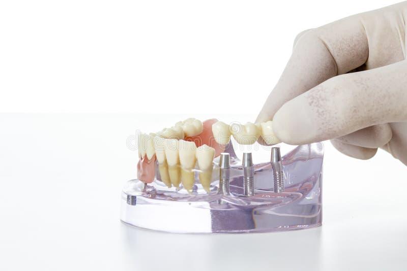 Voorbereiding van tandprothese royalty-vrije stock foto