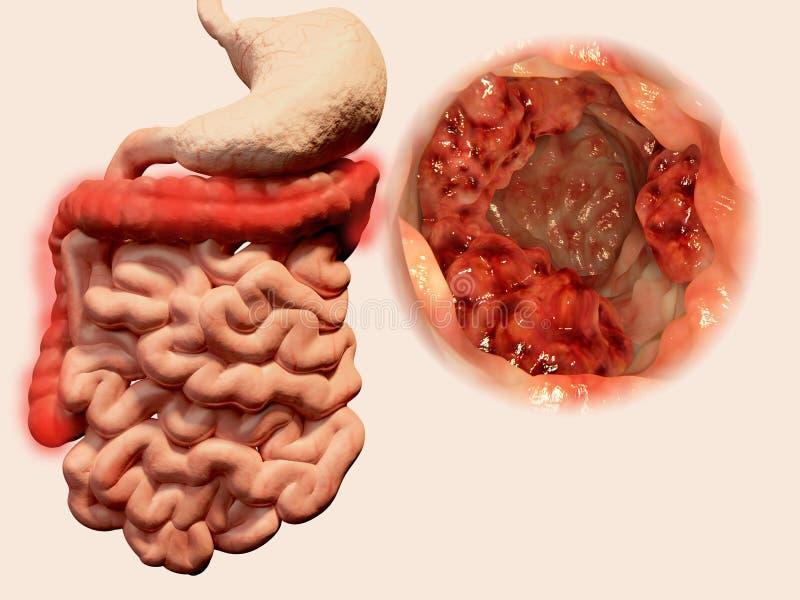 Voorkomen van tumors in het maagdarmkanaal stock illustratie