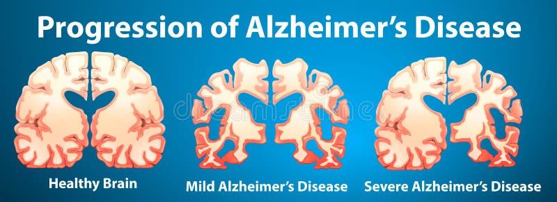 Vooruitgang van de ziekte van Alzheimer op blauwe achtergrond stock illustratie