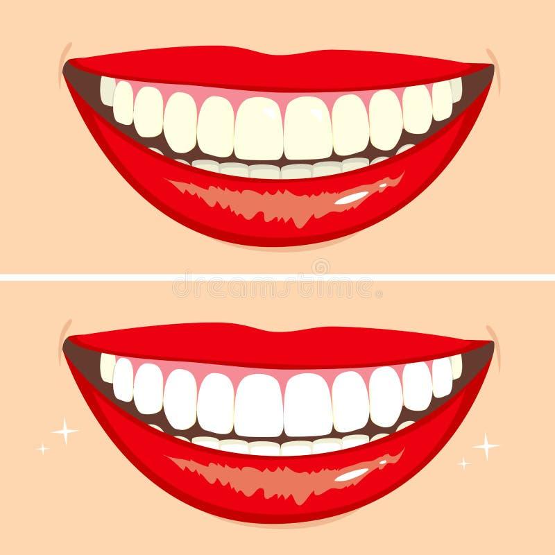 Vor und nach Lächeln lizenzfreie abbildung