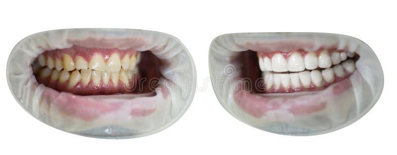Vor und nach Zähnen Gesunder weißer Lächelnabschluß oben Yollow gegen weiße Zähne lokalisierten Satz Vervollkommnen Sie Lächeln n lizenzfreies stockbild