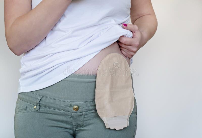 Vorderansicht über den Colostomybeutel in der Hautfarbe befestigt zum Frauenpatienten Nahaufnahme auf Stomatasche nach Chirurgie lizenzfreies stockfoto