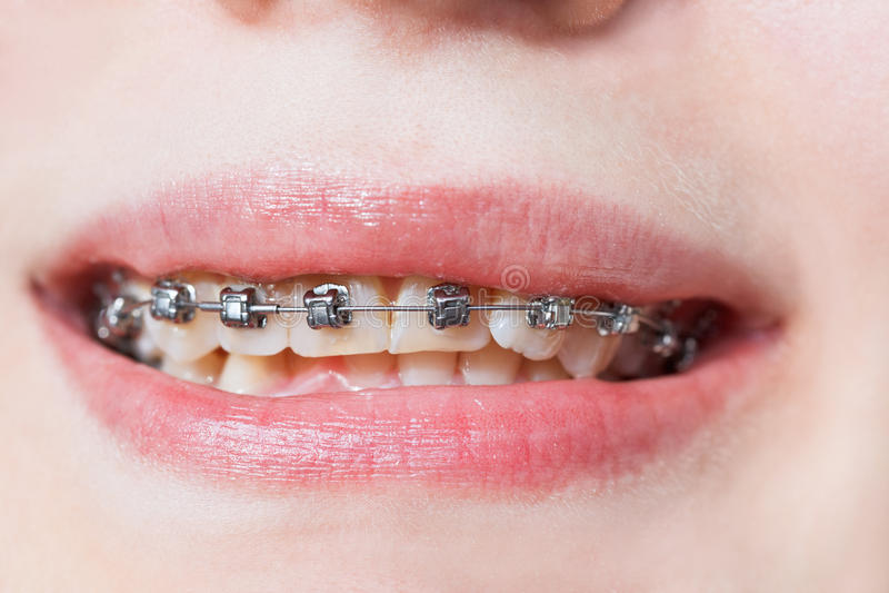 Vorderansicht von zahnmedizinischen Klammern auf Zähnen des oberen Kiefers lizenzfreie stockfotos