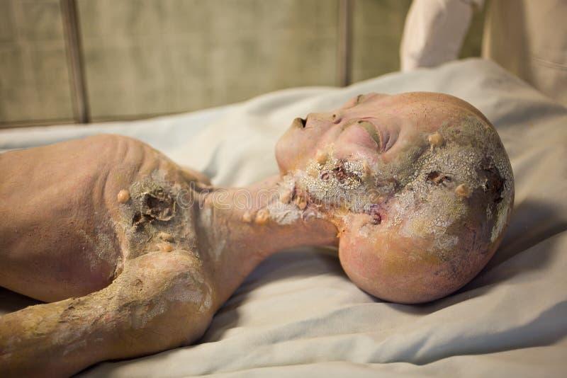 Vreemde Autopsie royalty-vrije stock foto