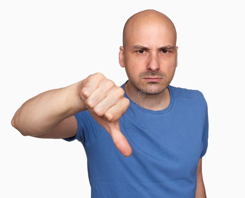 Vresig skallig man som ner gör en gest hans tumme fotografering för bildbyråer