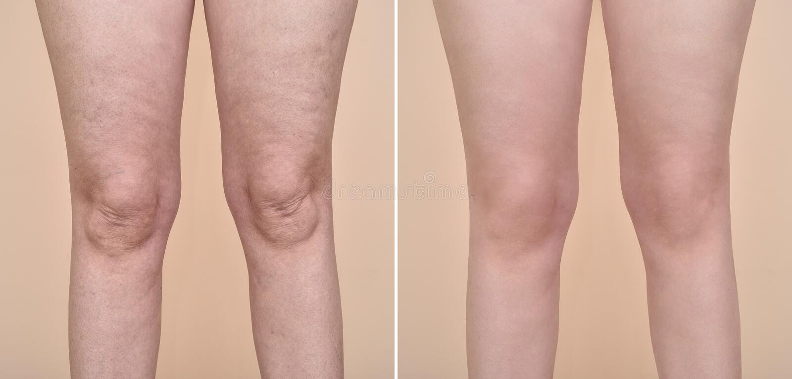 Vrouw before and after cellulite royalty-vrije stock afbeeldingen