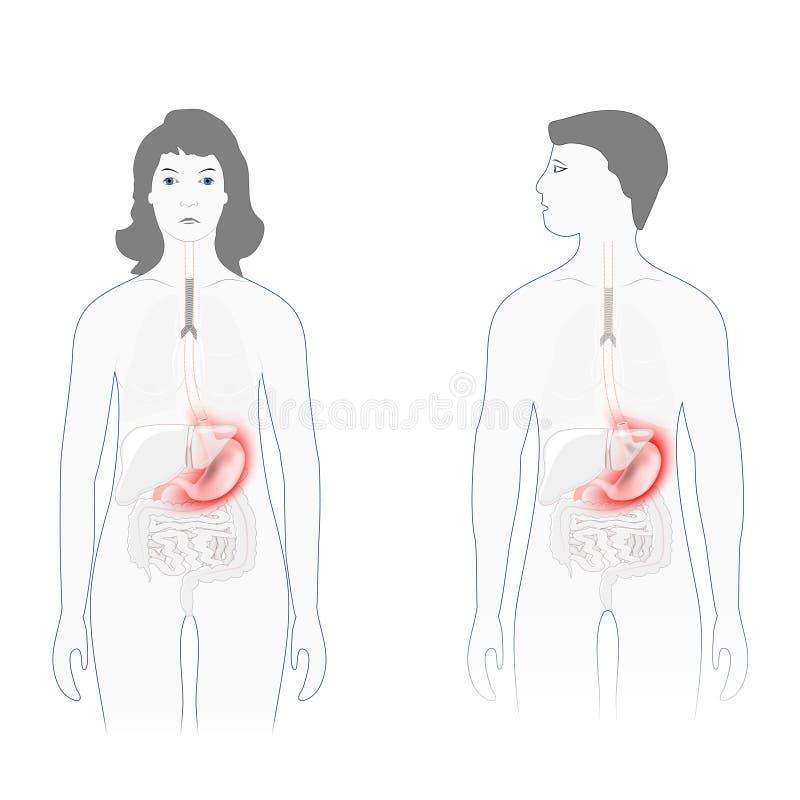 Vrouw die buikpijn, maagpijn of menstruele klemmen hebben Mannelijk en vrouwelijk silhouet met benadrukt van maag stock illustratie