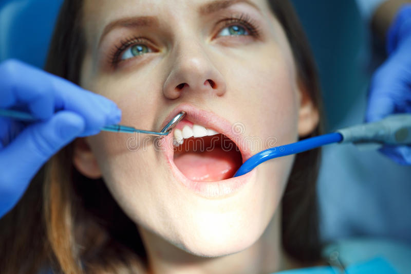 Vrouw die een tandbehandeling krijgen royalty-vrije stock foto