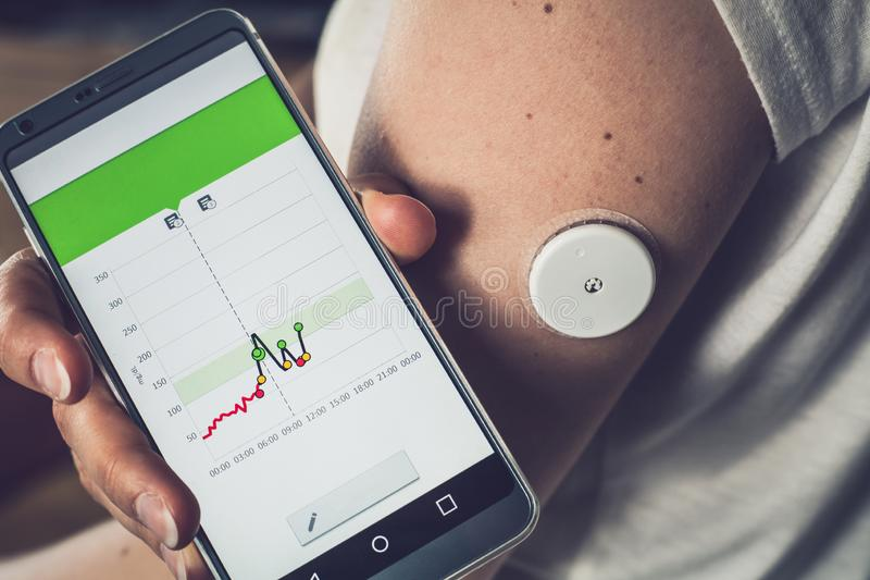 Vrouw die glucoseniveau met een verre sensor en mobiele telefoon, de glucoseniveaus van de sensorcontrole zonder bloed controlere royalty-vrije stock foto's