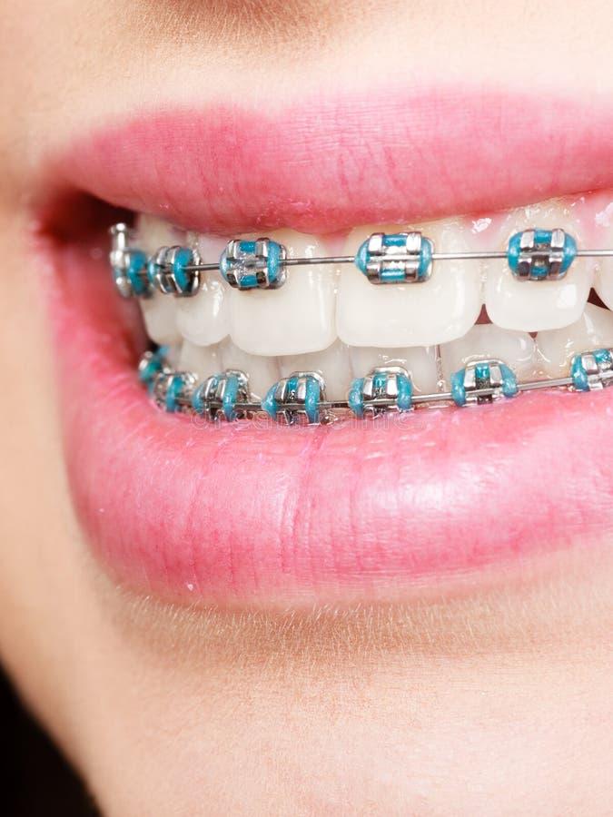 Vrouw die haar tanden met steunen tonen stock afbeelding