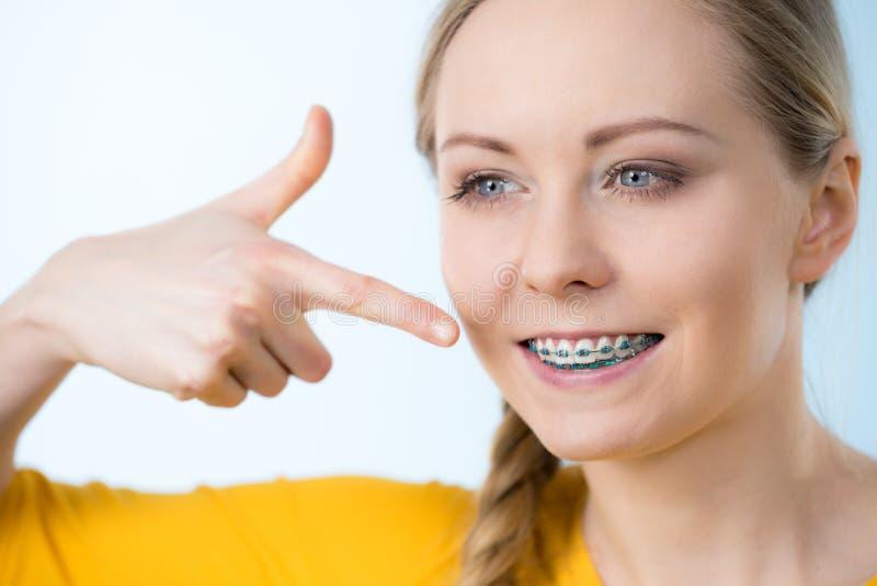 Vrouw die haar tanden met steunen tonen royalty-vrije stock foto's