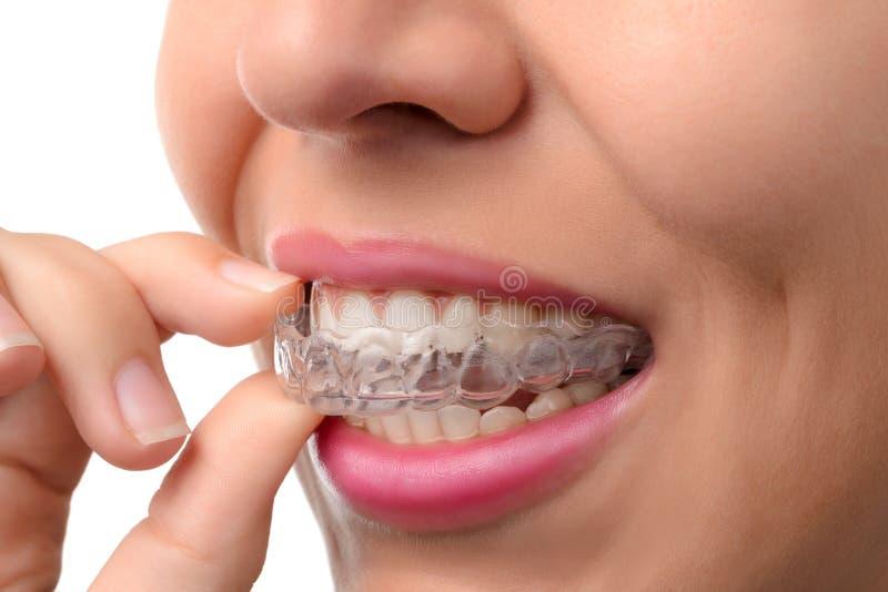 Vrouw die orthodontische siliconetrainer dragen stock foto