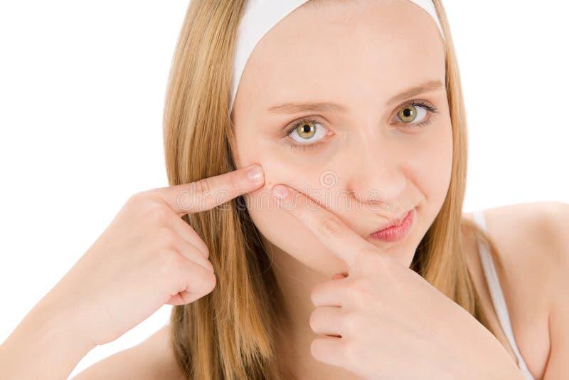 Vrouw die van de de zorgtiener van de acne de gezichtspukkel drukt stock afbeeldingen