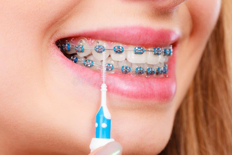 Download Vrouw Het Glimlachen Schoonmakende Tanden Met Steunen Stock Foto - Afbeelding bestaande uit toothbrush, borstel: 107700004