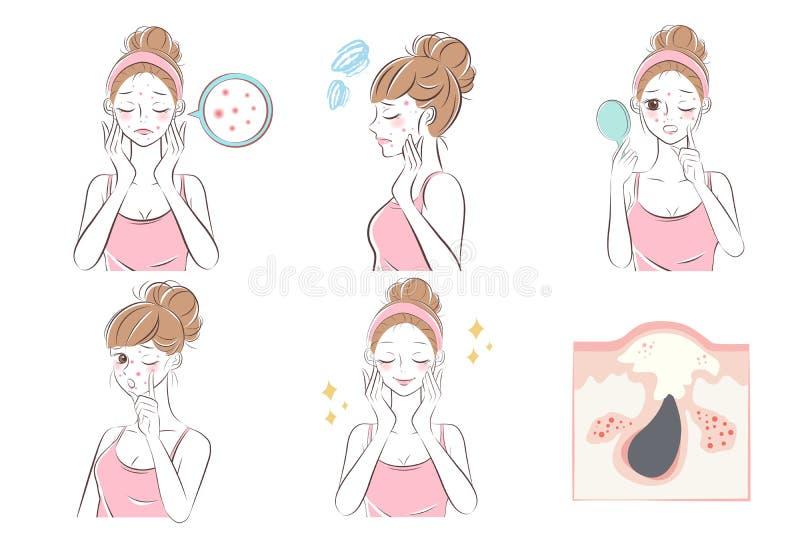 Vrouw met acneprobleem stock illustratie