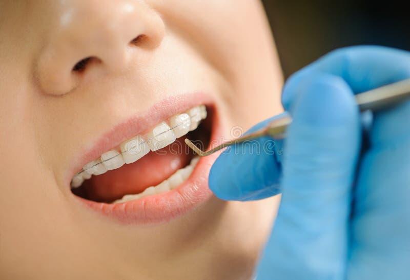 Vrouw met ceramische steunen op tanden op het tandkantoor stock foto