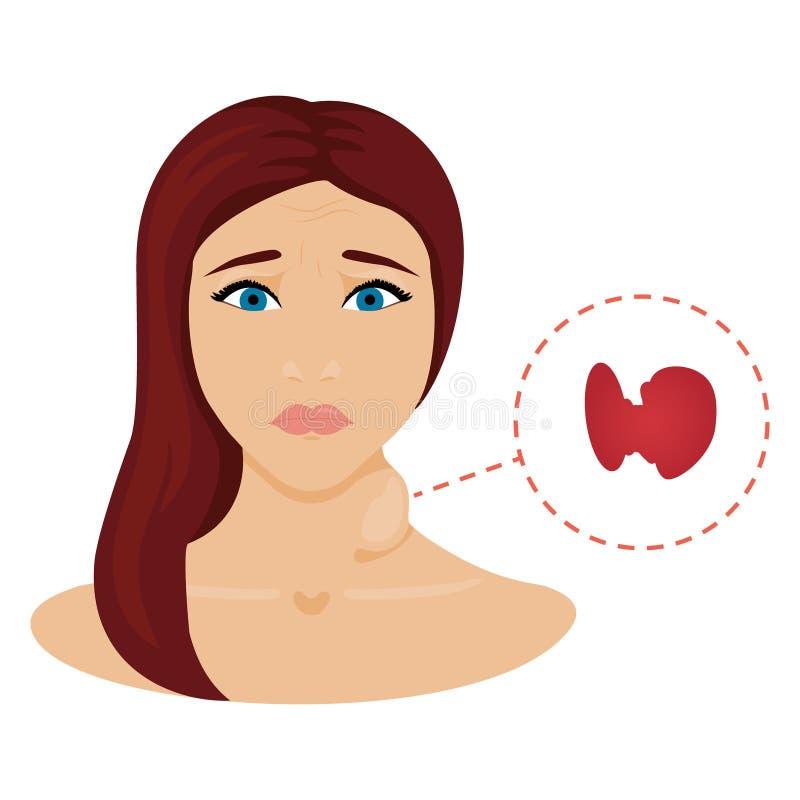 Vrouw met hyperschildklier stock illustratie