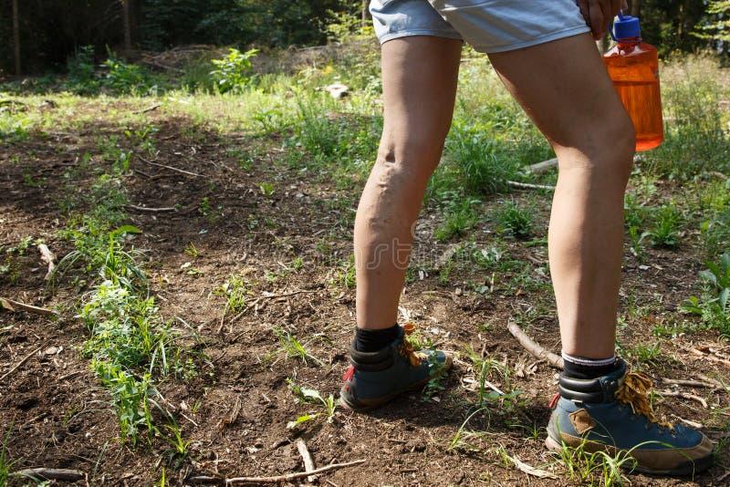Vrouw met pijnlijke spataders op benen die op een gang door aard rusten royalty-vrije stock foto