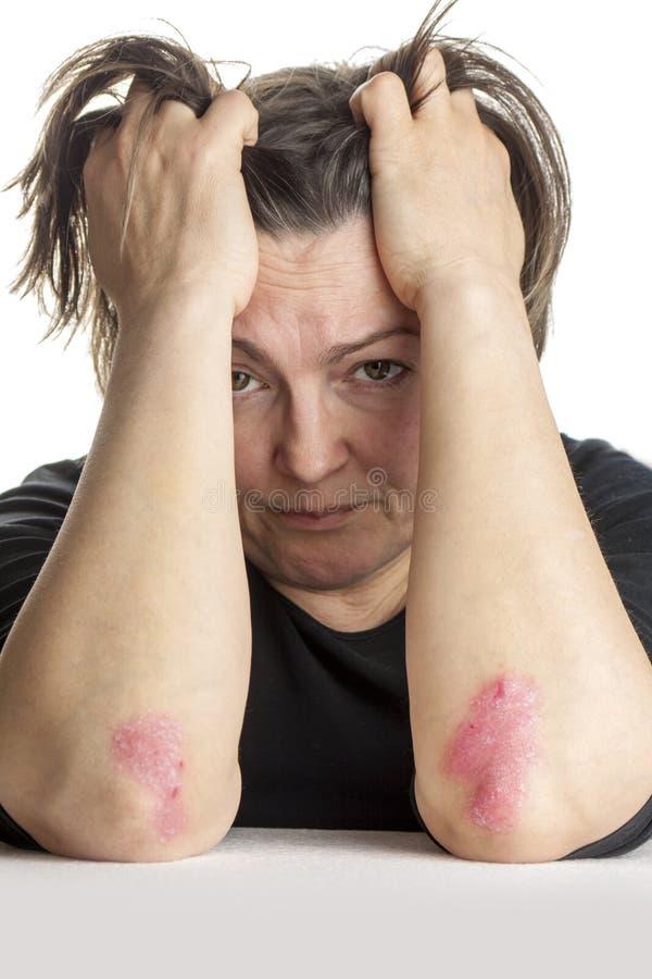 Vrouw met psoriasis stock afbeeldingen