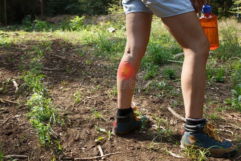 Vrouw met spataders op een wandelingsreis met rood punteffect stock foto