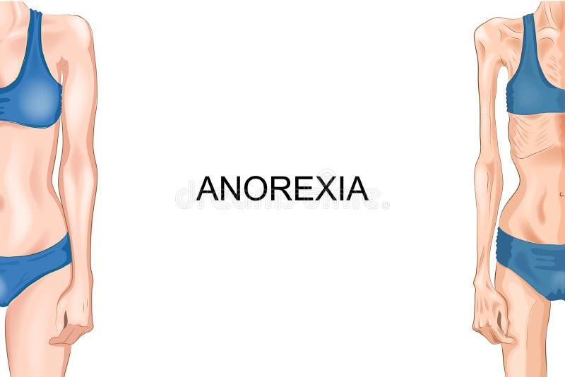 Vrouwelijk cijfer met anorexie royalty-vrije illustratie