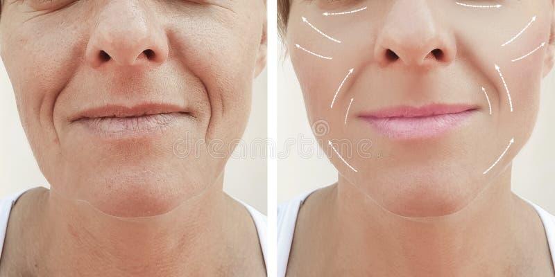 Vrouwelijk volwassen gezichts de vuller rijp geduldig verschil van de rimpelsverjonging before and after procedures, pijl stock afbeelding