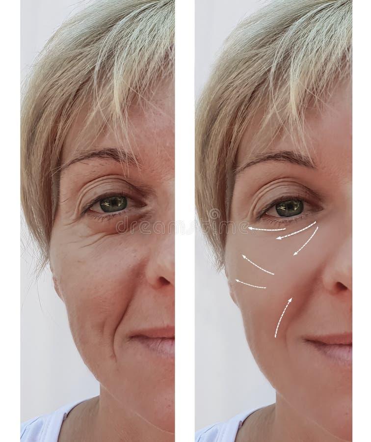 Vrouwelijk volwassen van de het contrastlift van de rimpelsverwijdering de vuller geduldig verschil before and after procedures,  stock foto's