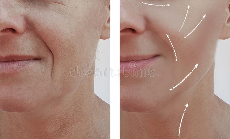 Vrouwelijk volwassen van de de verjongingsdermatologie van de rimpelsverwijdering de vuller geduldig verschil before and after pr stock afbeeldingen