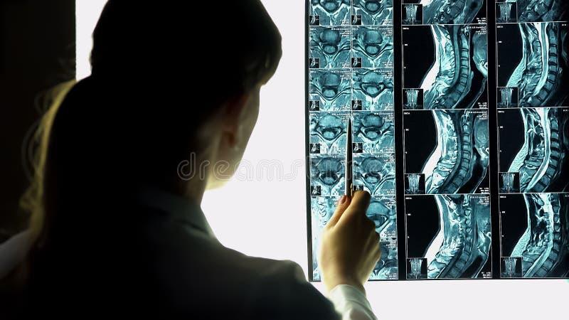 Vrouwelijke arts die op geduldige röntgenstraal, algemeen medisch onderzoek richten, gezondheidsprobleem stock afbeelding
