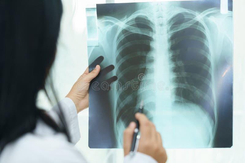 Vrouwelijke arts die over longen met x-ray film onderzoeken - zieke conce stock afbeelding