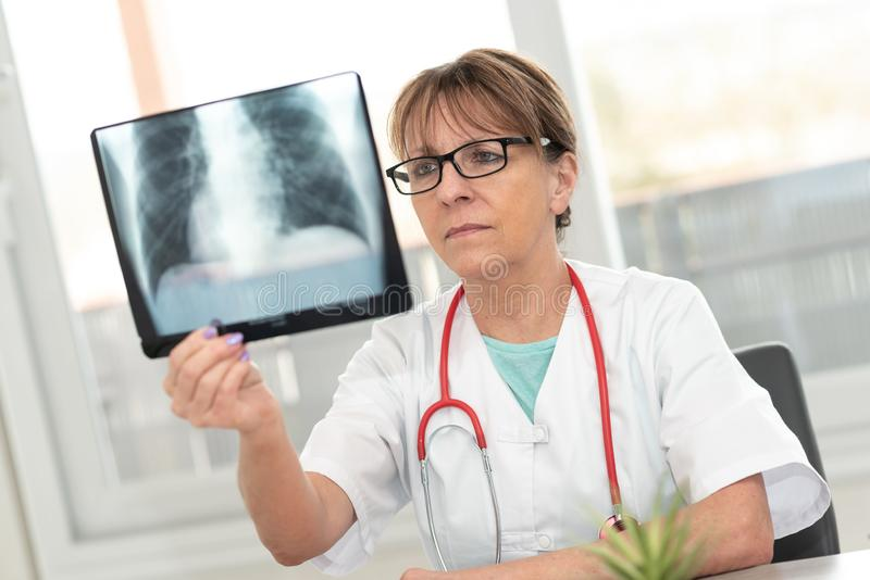 Vrouwelijke arts die r?ntgenstraal bekijkt royalty-vrije stock fotografie