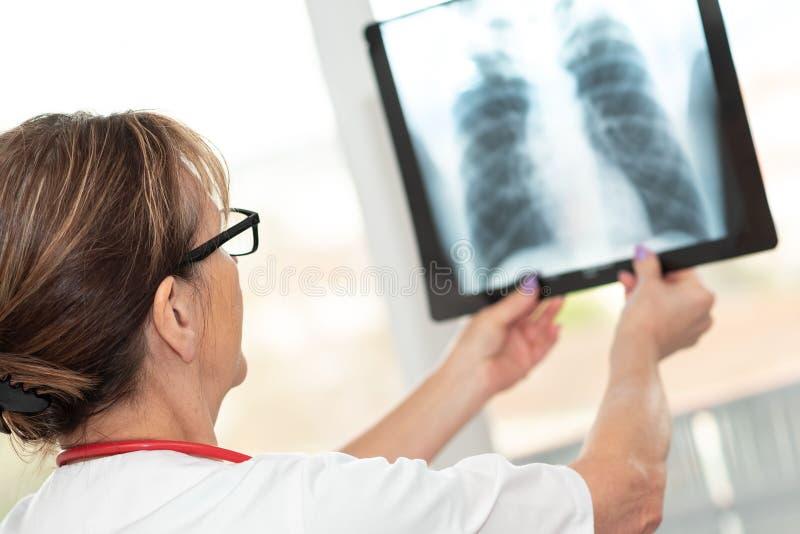 Vrouwelijke arts die r?ntgenstraal bekijkt stock foto's