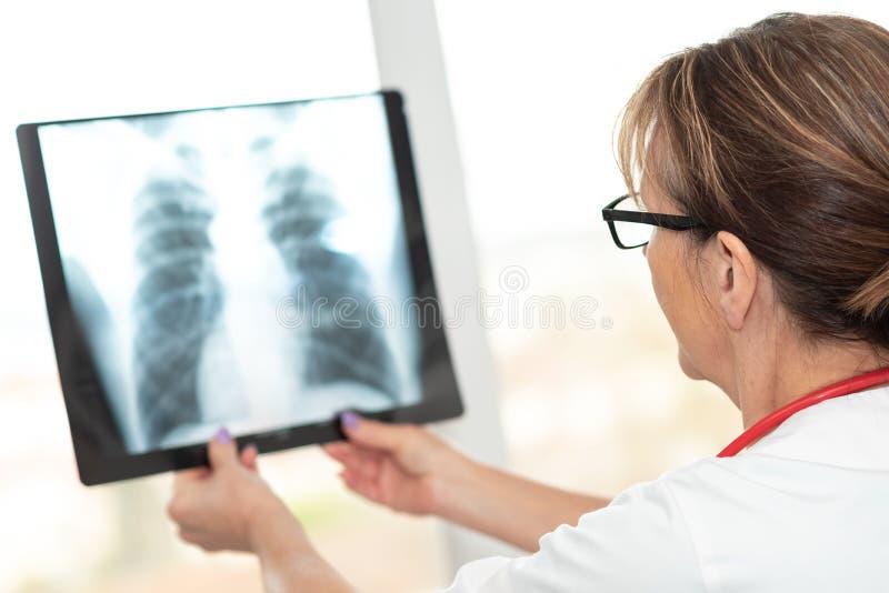 Vrouwelijke arts die r?ntgenstraal bekijkt royalty-vrije stock foto