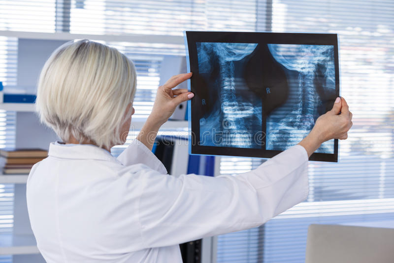 Vrouwelijke arts die x-ray rapport onderzoeken stock foto's