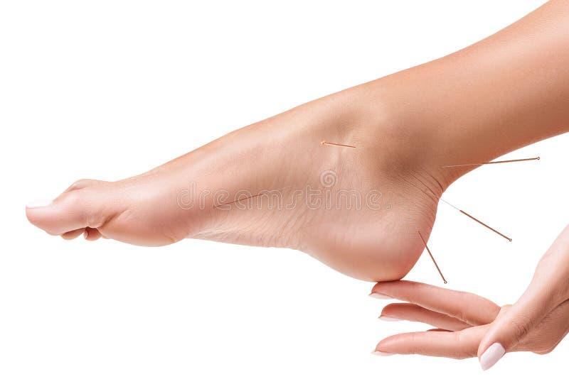 Vrouwelijke benen met de naalden van de tussenvoegselacupunctuur stock fotografie