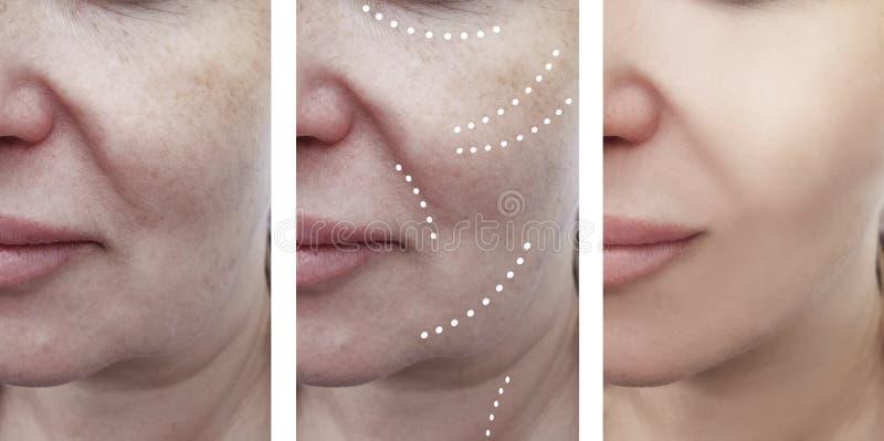 Vrouwelijke gezichtsrimpels before and after collageprocedures stock foto's