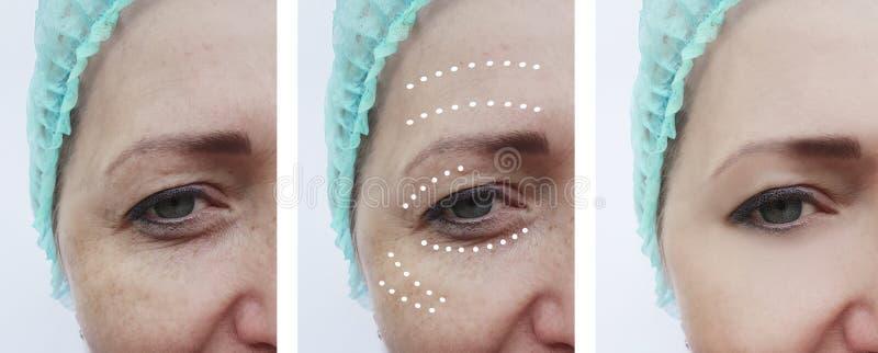 Vrouwelijke gezichtsrimpels before and after effect collageprocedures stock foto's