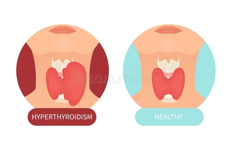 Vrouwelijke gezonde schildklier en zijn wanorde stock illustratie