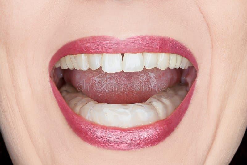 Vrouwelijke het malenwacht van mondtanden stock foto
