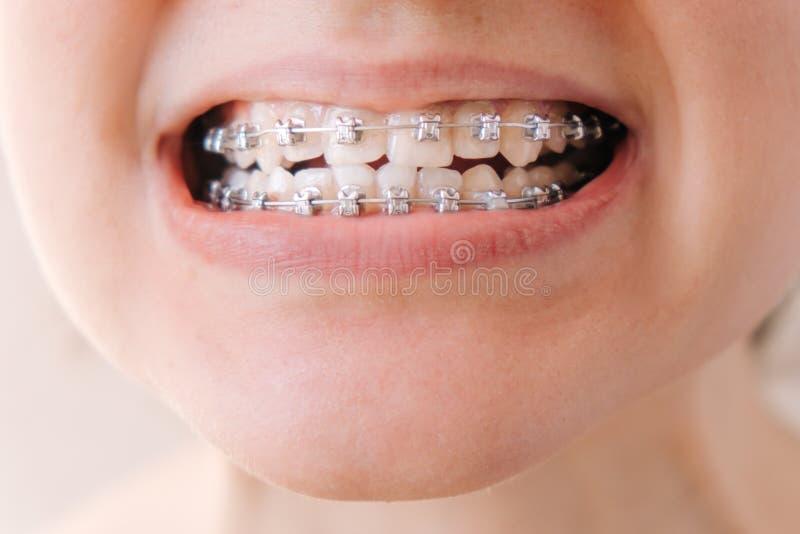 Vrouwelijke mond met steunenclose-up, correctie van malocclusion stock fotografie