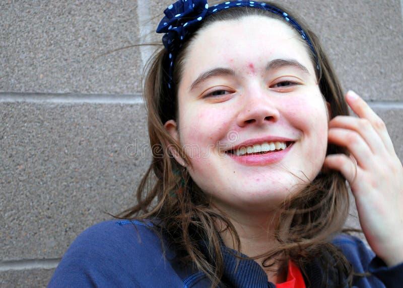 Vrouwelijke schoonheid met acne stock foto