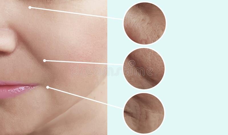 Vrouwelijke schoonheidsrimpels voordien na de schoonheidsspecialisteffect van de verschilcollage spanningsbehandelingen stock foto's