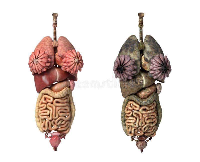 Vrouwelijke volledige interne organen, healty en unhealty. vector illustratie